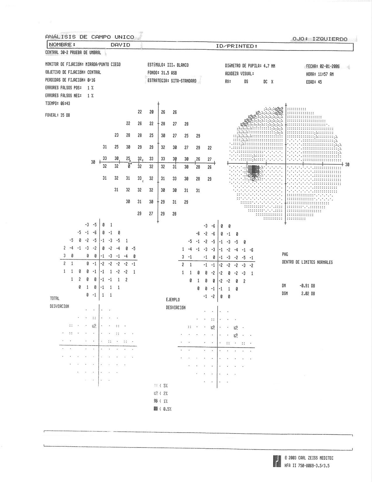 Visual Field | FitEyes.com