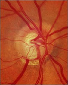 optic nerve fundus photo