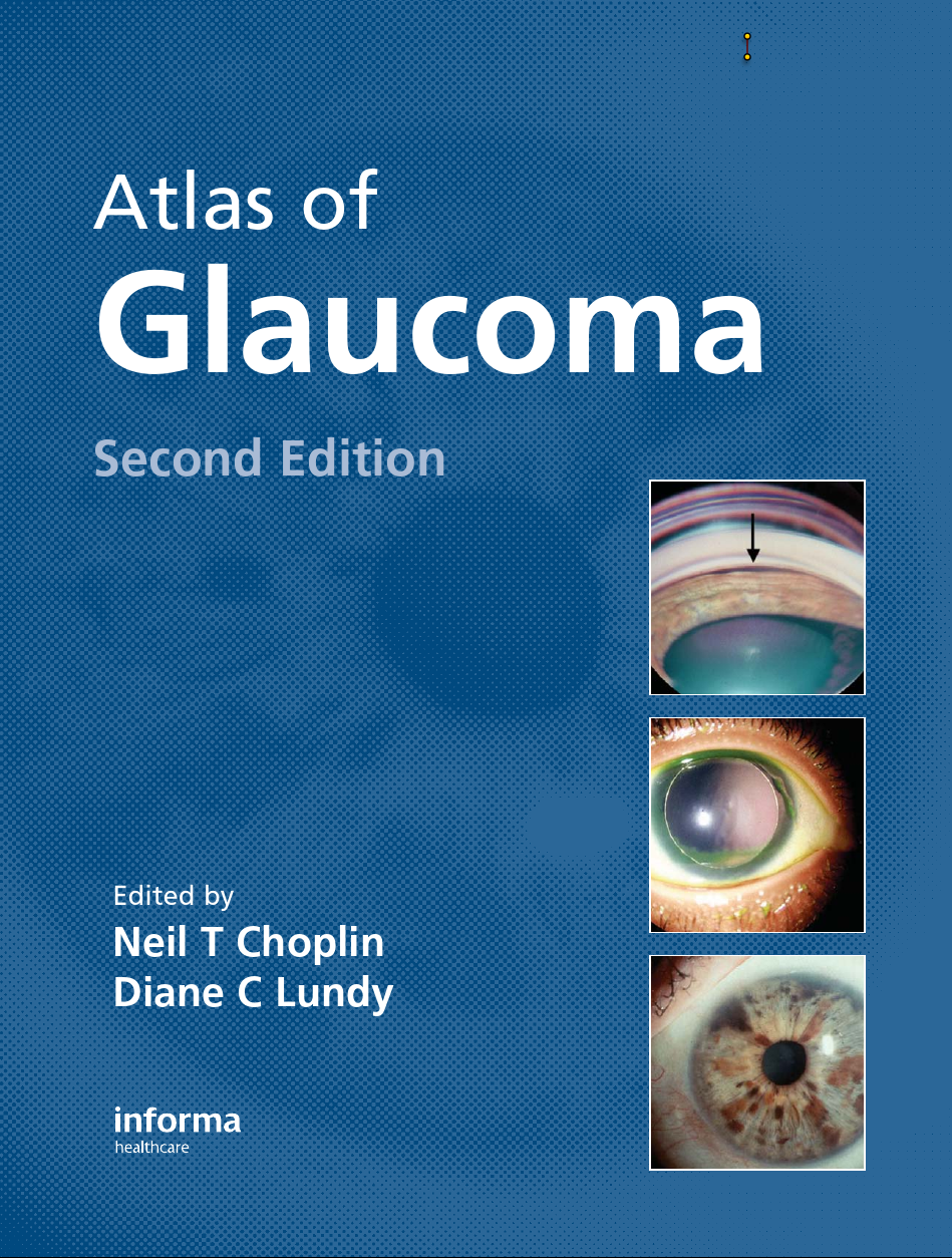 Atlas of Glaucoma